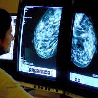 There are 'critical gaps' in breast cancer research