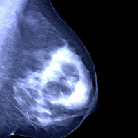 More than 1.5 million British women have breast x-rays or mammograms each year