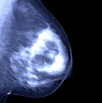 Mammogram shows breast cancer in its advanced stages