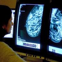 A new test could offer hope to women suffering from breast cancer