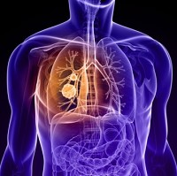 By 2040, just under half of women with lung cancer will be alive at least five years from diagnosis