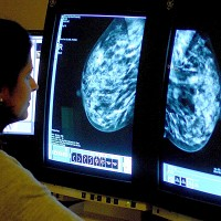Be Clear on Cancer is targeting older women to increase early diagnoses of breast cancer
