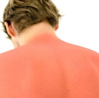 Nearly three-quarters of Brits admitted to getting sunburnt in the past year