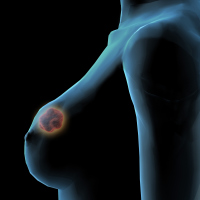 1.8 million women have taken part in the breast cancer study