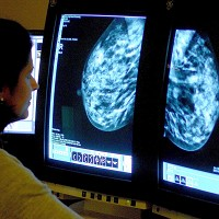 Breast cancer is the most common cancer in the UK
