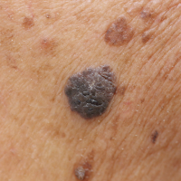 Each year 15,400 Britons are diagnosed with malignant melanoma