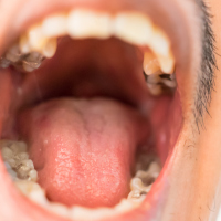 Know your mouth' to prevent oral cancer threat | World First