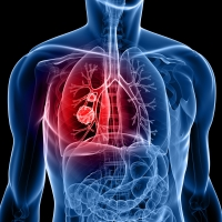The new drug will be able to extend the life of those suffering from late-stage lung cancer