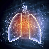 A lung expert has called for a new national screening programme