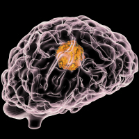 Brain tumours are a major cancer killer