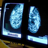 'Tipping point' achieved in cancer survival rates, say researchers (Photo: Rui Vieira/PA Wire)