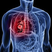 People with lung cancer still face inequalities when accessing treatments, data suggests