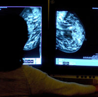 Researchers have made a breakthrough in breast cancer research