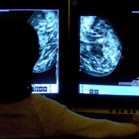 15.4% of all new cancer diagnoses in England are attributed to breast cancer
