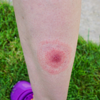 A bullseye-shaped rash is symptomatic of Lyme disease