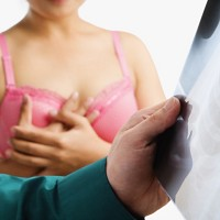 Breast cancer kills around 11,500 people in the UK each year
