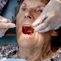 Experts have warned about the number of over-65s facing urgent dental conditions